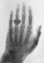 One of the first X-ray photographs made by...