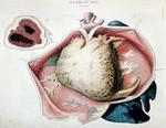 Pericarditis, plate depicting heart diseases from 'Anatomie pathologique du corps humain' by Jean Cruveilhier (1791-1874), published in Paris, 1828-42 (colour engraving)