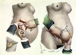 Birth by Caesarean, plate from 'Traite Complet de l'Anatomie et de l'Homme' by Jean-Baptiste Marc Bourgery (1797-1849) 1866-67 (colour litho)