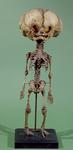 Skeleton of a full term foetus with hydrocephalus, 1796