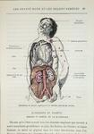 Effects of diabetes, from 'Les Grands Meaux et les Grands Remedes' by Dr. J. Rengade, Paris, 1884 (coloured engraving)