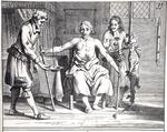Blood transfusion from a dog, from 'Armamentarii Chirurgici' by Johannes Schultes (1595-1645) published in Amsterdam, 1671 (engraving) (b/w photo)