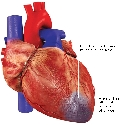 Damaged heart muscle During angina, areas of...