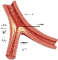 Restricted blood flow Atherosclerosis can occur...