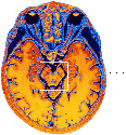 Deep in the brain  This color-enhanced MRI scan...