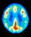 Brain activity in bipolar disorder  These PET...
