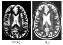 Examples of brain aging as seen on MR...