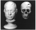 Frontal view Phincas Gage's life mask...