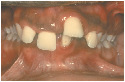 Juvenile periodontal disease (red gums, crooked...