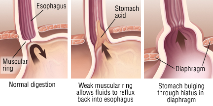 Gastroesophageal Reflux Credo Reference