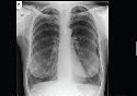 Chest X-ray showing typical changes of...