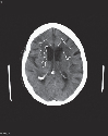 Typical CT appearances in vascular dementia. The...