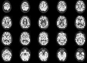 Sequential images from an F-18-FDG PET brain...